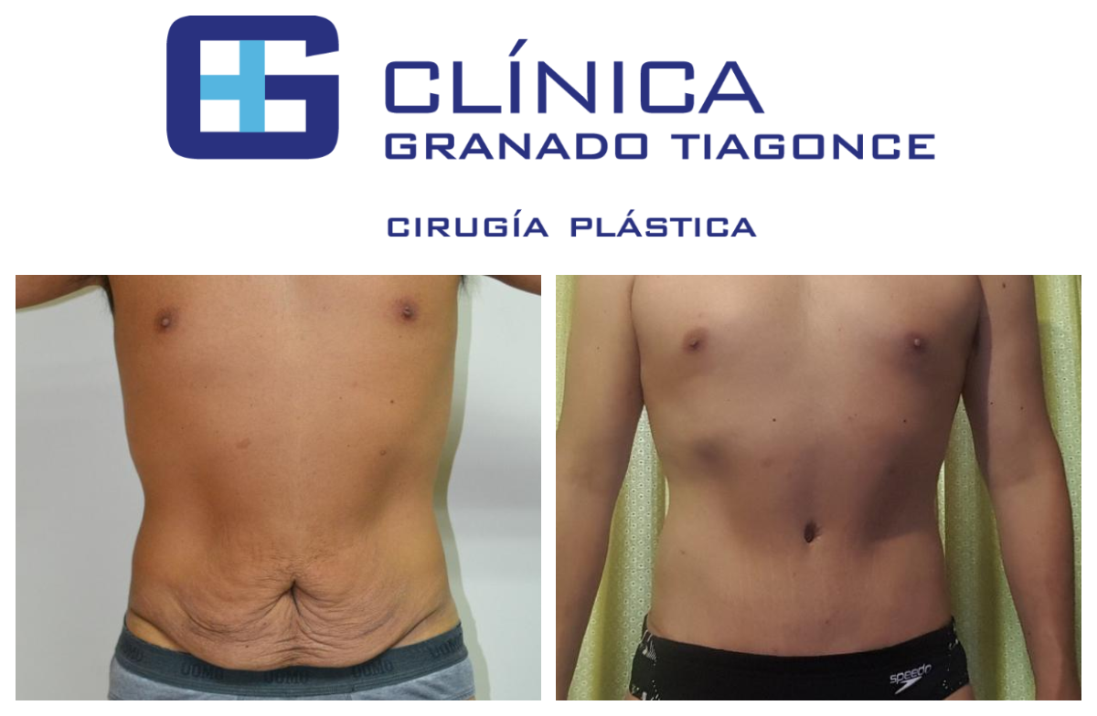 Tummy tuck in Spain   The BEST 20 clinics ▷ Prices 20