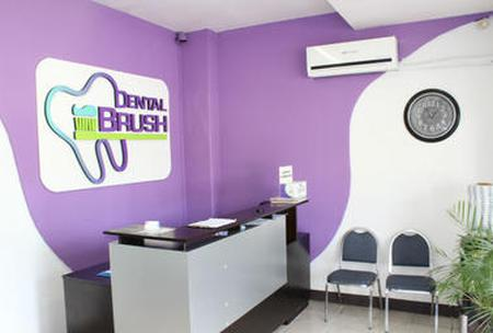 Find Braces prices at My Dental Brush Mexicali in Mexico